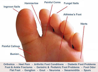 Miriam Heffernan - Dublin, Chiropodist, Foot Doctor, Podiatrist